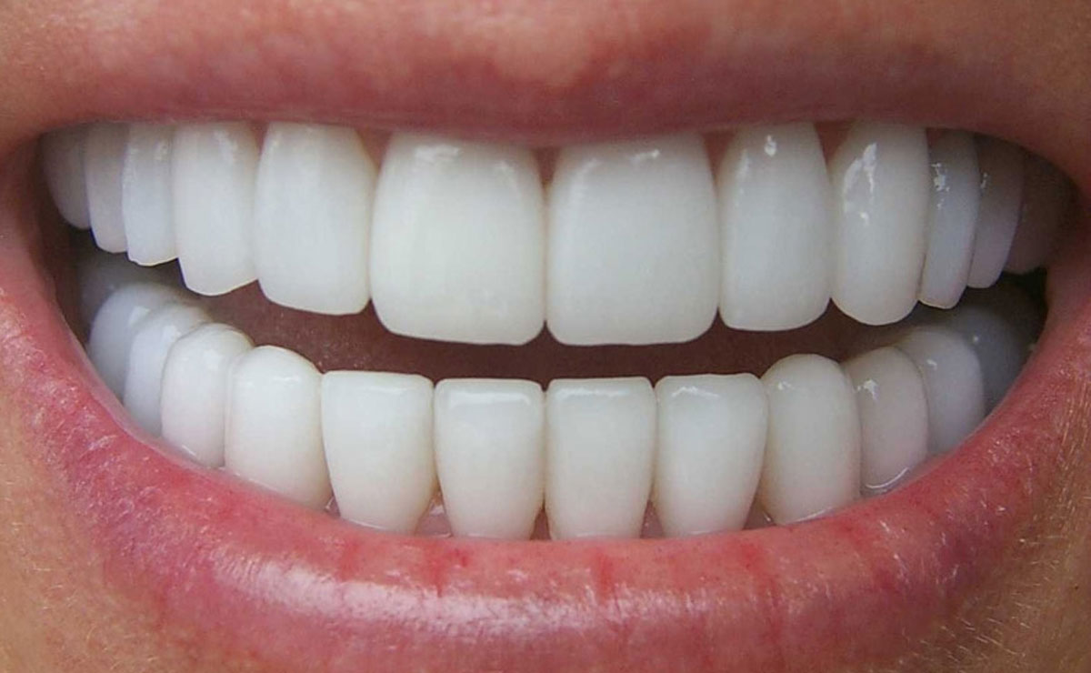 Dente in zirconio